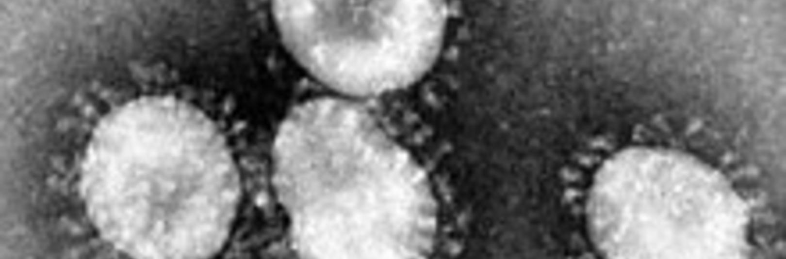 Rafeindasmásjármynd af kórónuveirunni SARS-CoV-2 sem veldur sjúkdómnum COVID-19. Mynd/Wikipedia Commons (sótt 19.03.2020)